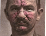 Rosacea , from photographic illustrations of skin diseases