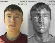 UV sensitive photograph showing the visible effects of sunscreen use.